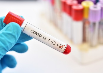 Blood sample tube positive with COVID-19